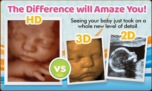 hd ultrasound